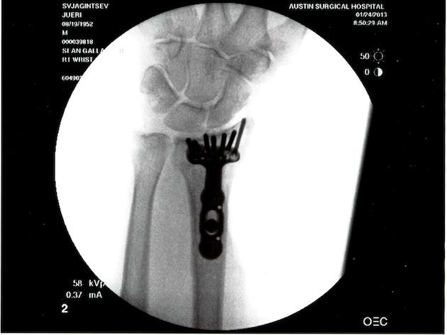 Surgery-Broken Wrist 22